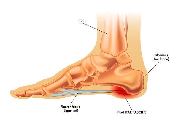Foot & Heel Pain? Plantar Fasciitis Explained